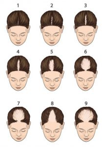 types of hair loss Hair Science Clinic