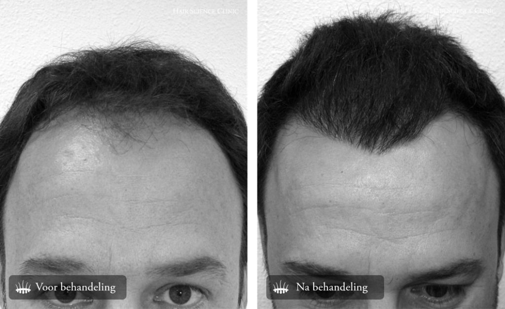 Before after photo Hair Transplant