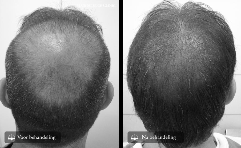 Hair Transplant 2800 Grafts