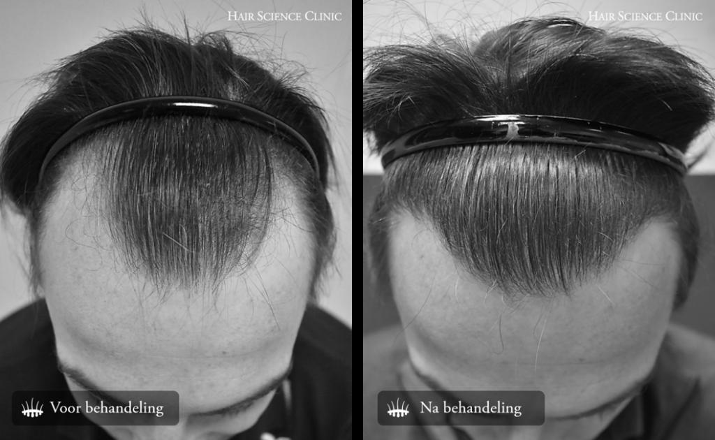 Hair Transplant Grafts