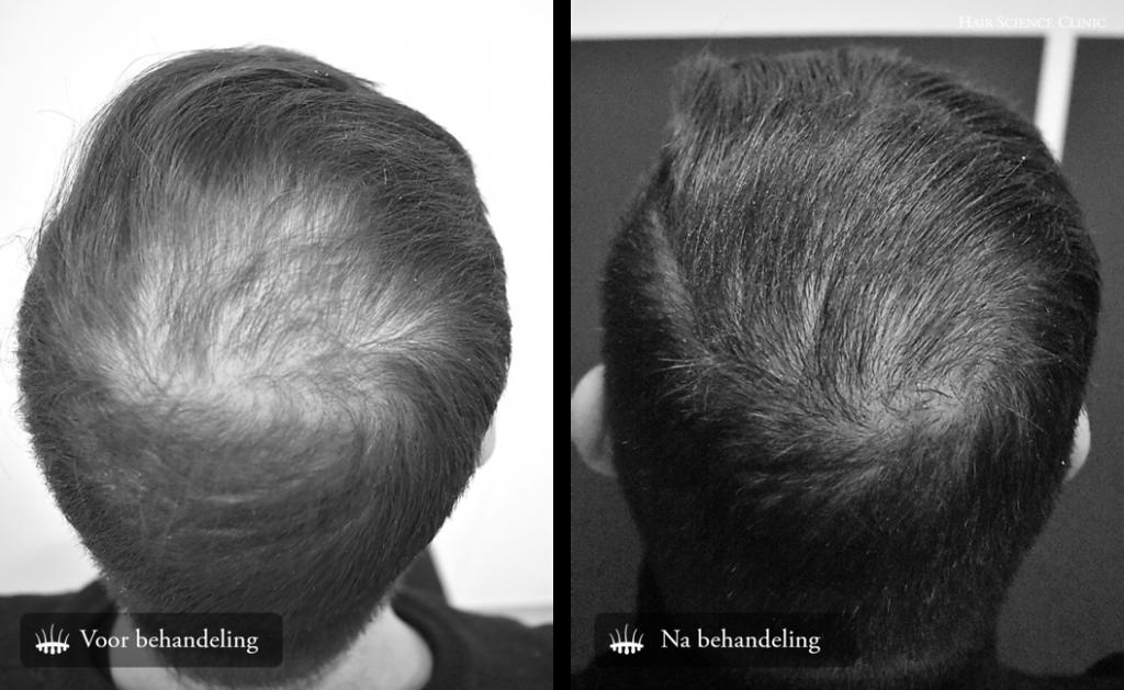 Hair Transplant Hair Loss
