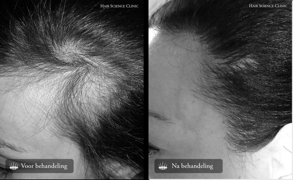 Hair Transplant Result Women