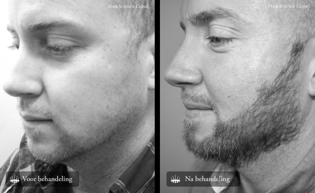 Hair transplant beard