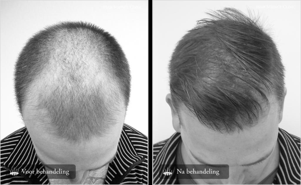 Hair transplant crown result 1