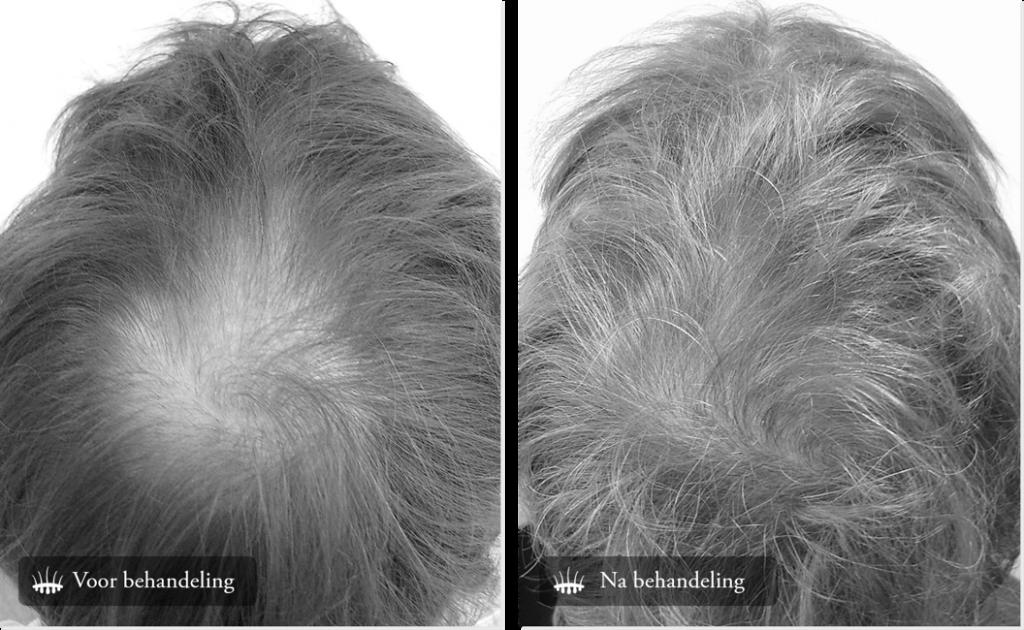Hair transplant crown result
