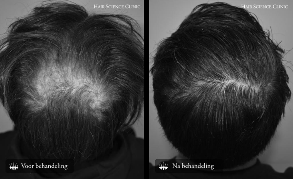 Hair transplant crown treatment