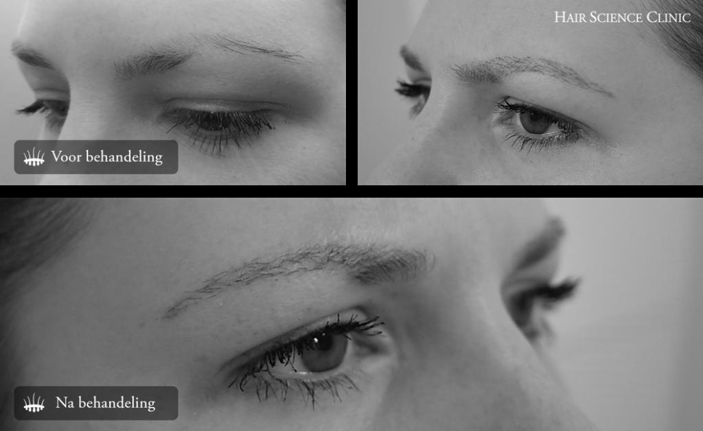 Hair transplant eyebrows