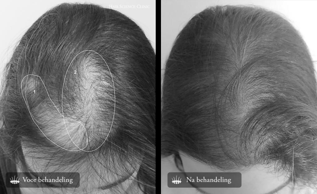 Hair transplant hair loss woman
