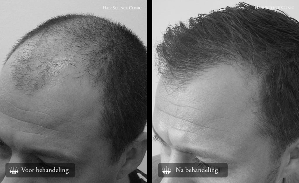 Hair transplant photos men