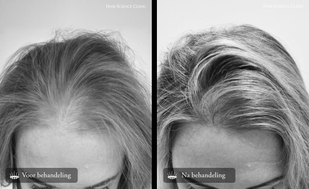 Hair transplant woman