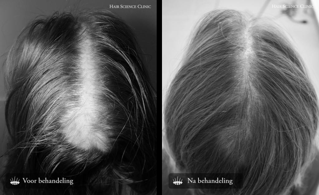 Hair transplant woman crown
