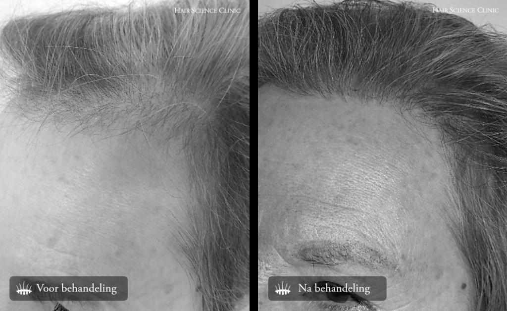 Hair transplant woman hair loss