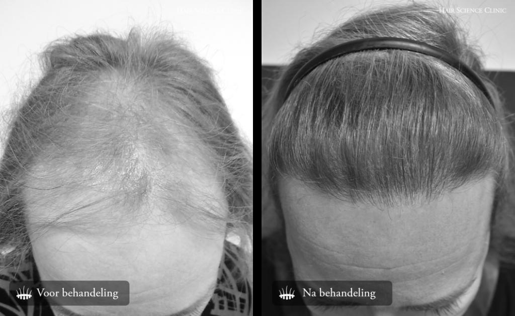 Hair transplant woman result