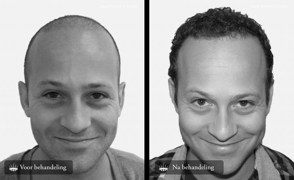 Photos hair transplant