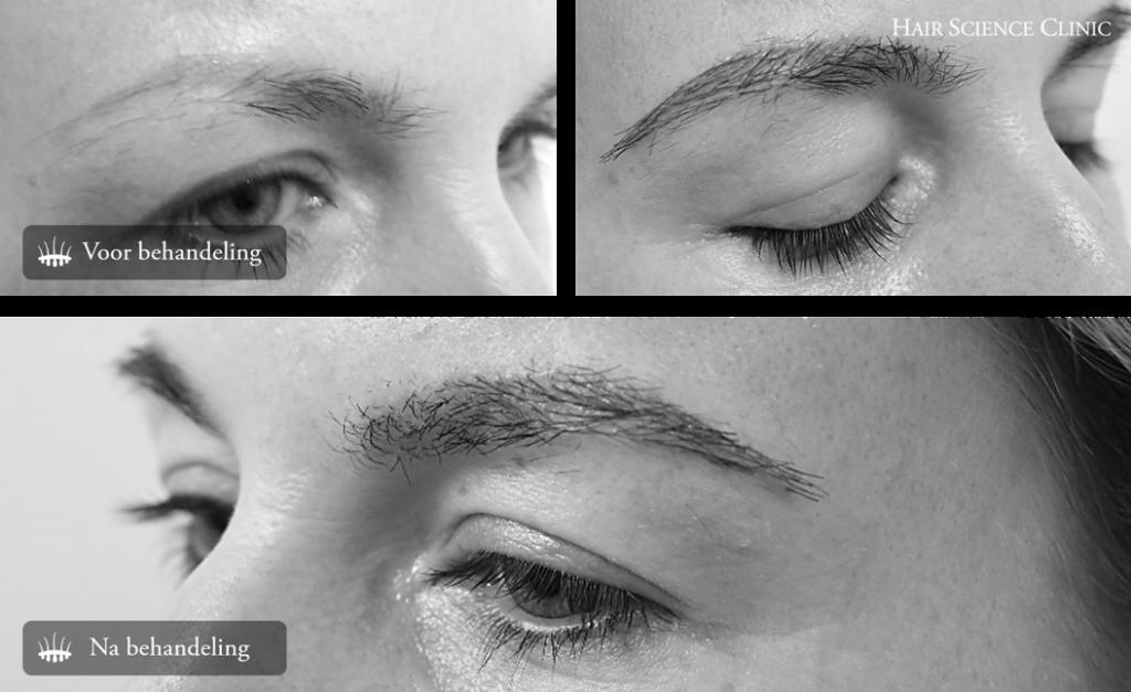 Result eyebrow transplant