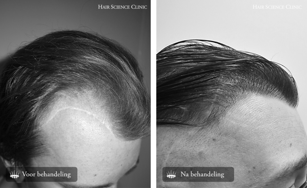 hair transplant scar tissue