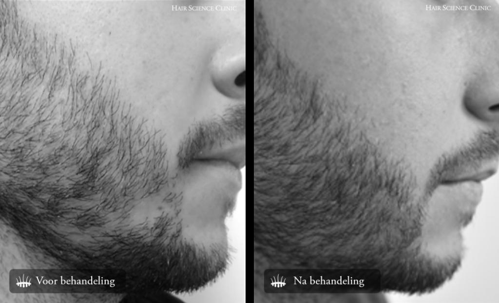 result beard transplant